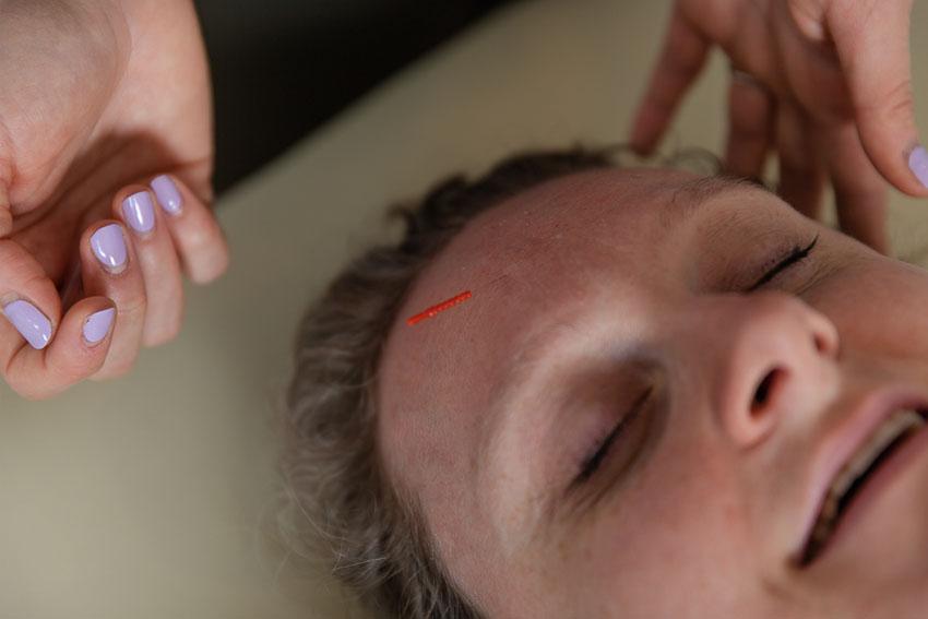 Safe Acupuncture